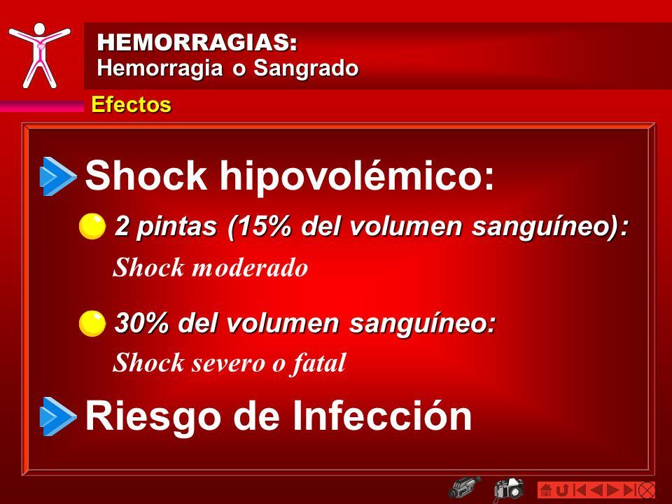 Efectos HEMORRAGIAS: Hemorragia o Sangrado Shock hipovolémico: Riesgo de Infección 2 pintas (15% del volumen sanguíneo): 30% del volumen sanguíneo: Sh