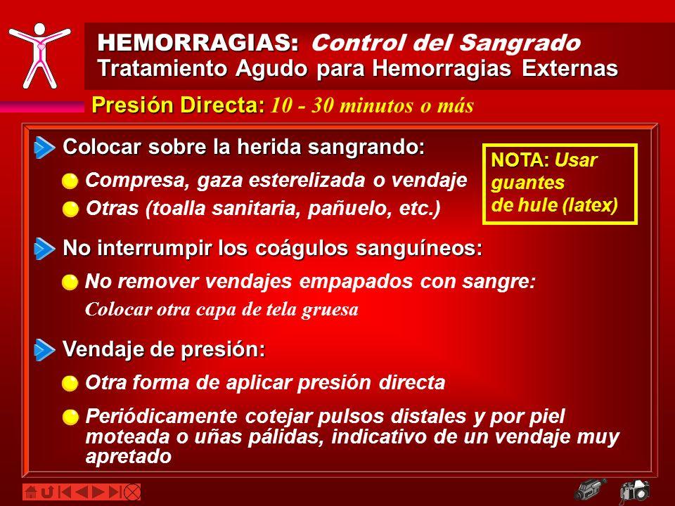 HEMORRAGIAS: HEMORRAGIAS: Control del Sangrado Tratamiento Agudo para Hemorragias Externas Presión Directa: Presión Directa: 10 - 30 minutos o más Col