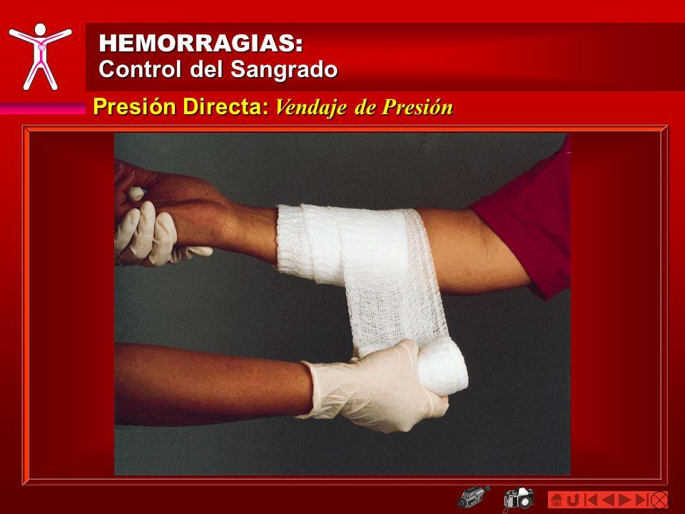 Vendaje (de Corbata) en forma de Dona HEMORRAGIAS: Control del Sangrado Presión Directa: Objetos Incrustrados/Huesos Sobresale