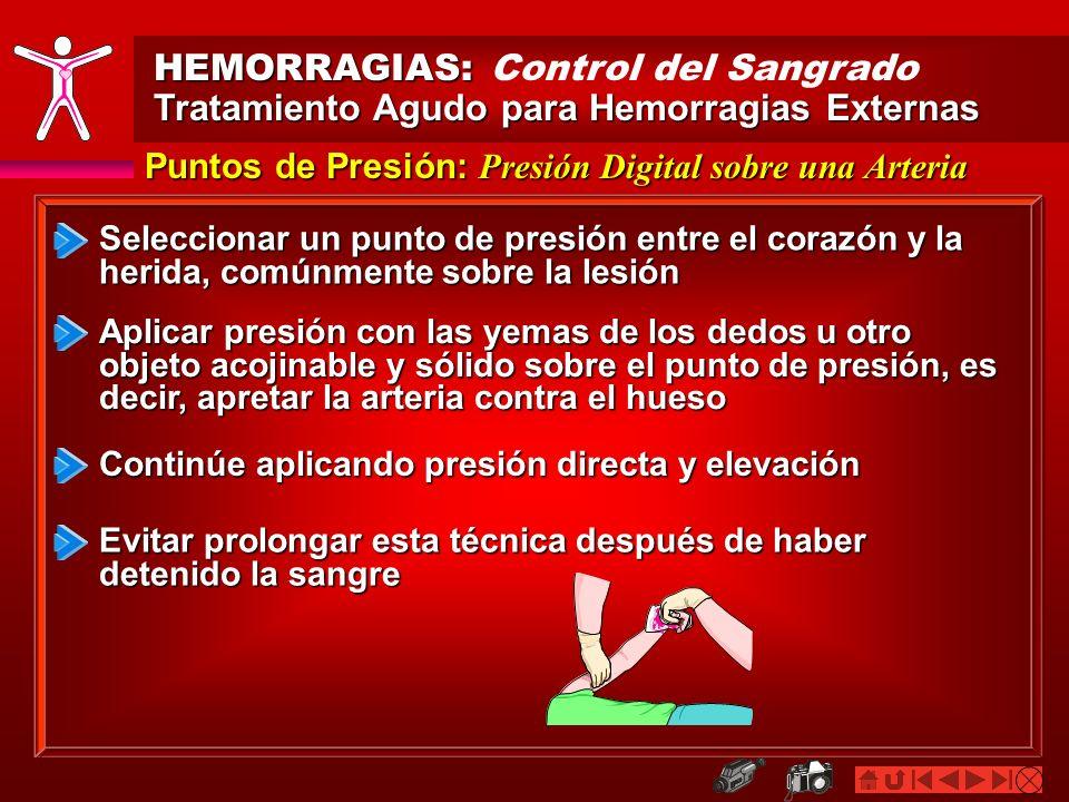 HEMORRAGIAS: HEMORRAGIAS: Control del Sangrado Tratamiento Agudo para Hemorragias Externas Puntos de Presión: Presión Digital sobre una Arteria Selecc