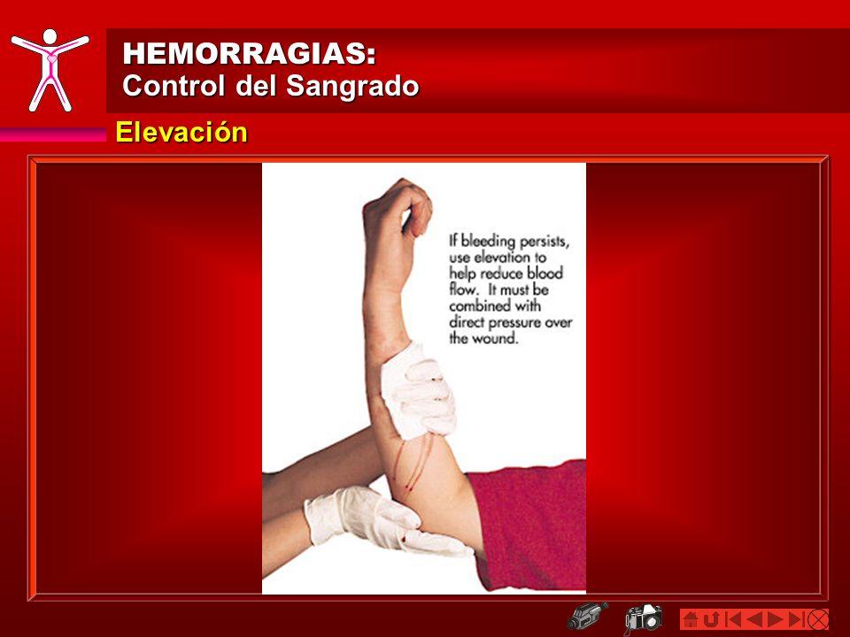 Elevación HEMORRAGIAS: Control del Sangrado