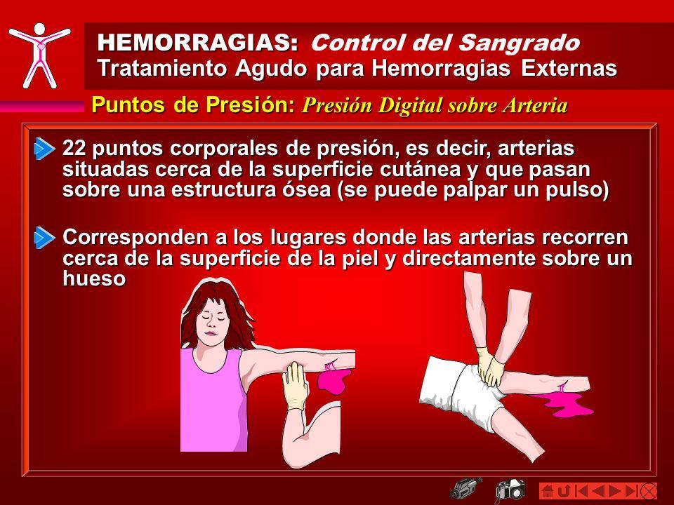 HEMORRAGIAS: HEMORRAGIAS: Control del Sangrado Tratamiento Agudo para Hemorragias Externas Puntos de Presión: Presión Digital sobre Arteria 22 puntos