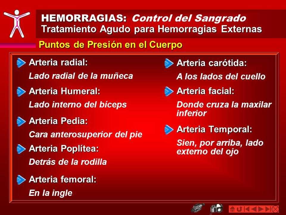 HEMORRAGIAS: HEMORRAGIAS: Control del Sangrado Tratamiento Agudo para Hemorragias Externas Puntos de Presión en el Cuerpo Arteria radial: Lado radial