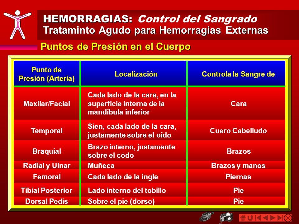 HEMORRAGIAS: HEMORRAGIAS: Control del Sangrado Trataminto Agudo para Hemorragias Externas Puntos de Presión en el Cuerpo