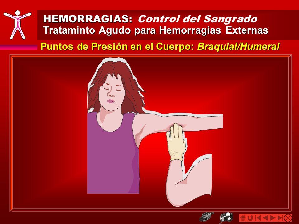 HEMORRAGIAS: HEMORRAGIAS: Control del Sangrado Trataminto Agudo para Hemorragias Externas Puntos de Presión en el Cuerpo: Femoral