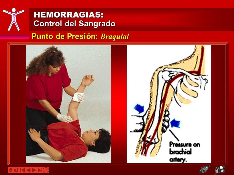 Punto de Presión: Braquial HEMORRAGIAS: Control del Sangrado