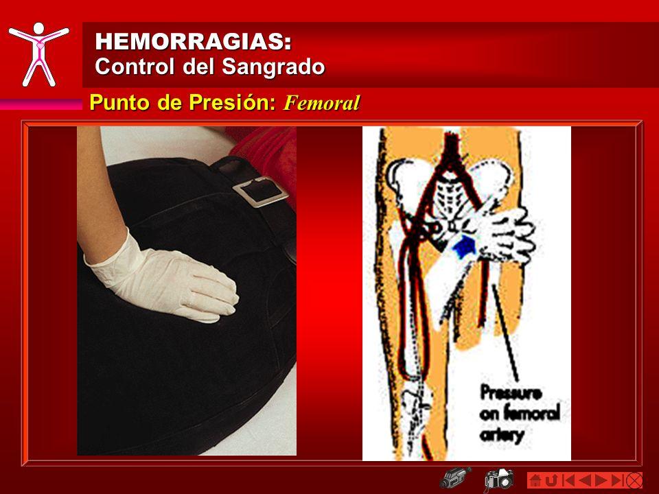 HEMORRAGIAS: HEMORRAGIAS: Control del Sangrado Tratamiento Agudo para Hemorragias Externas Torniquete Envuelva un vendaje de 2 pulgadas de ancho entre la herida y el corazón, ligeramente sobre la herida (1 - 2 pulgadas) o sobre la coyuntura Coloque una almohadilla sobre la arteria que suministra la sangre en el área de la herida La banda debe ser envuelta dos (2) veces alrededor de la extremidad afectada.