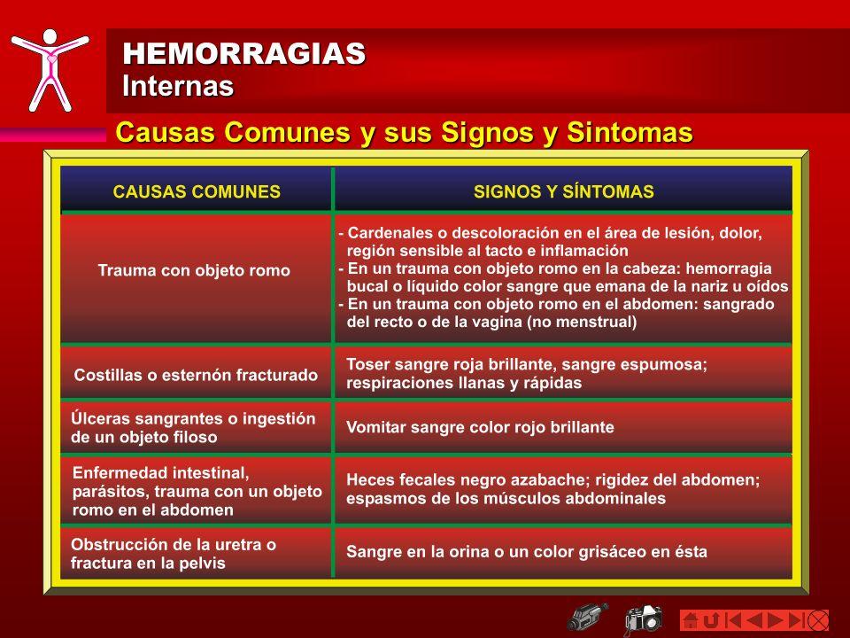 HEMORRAGIASInternas Signos y Síntomas: General Sangre: Tejidos blandos que son sensibles al tacto, se encuentran hinchados, rígidos o en espasmo.