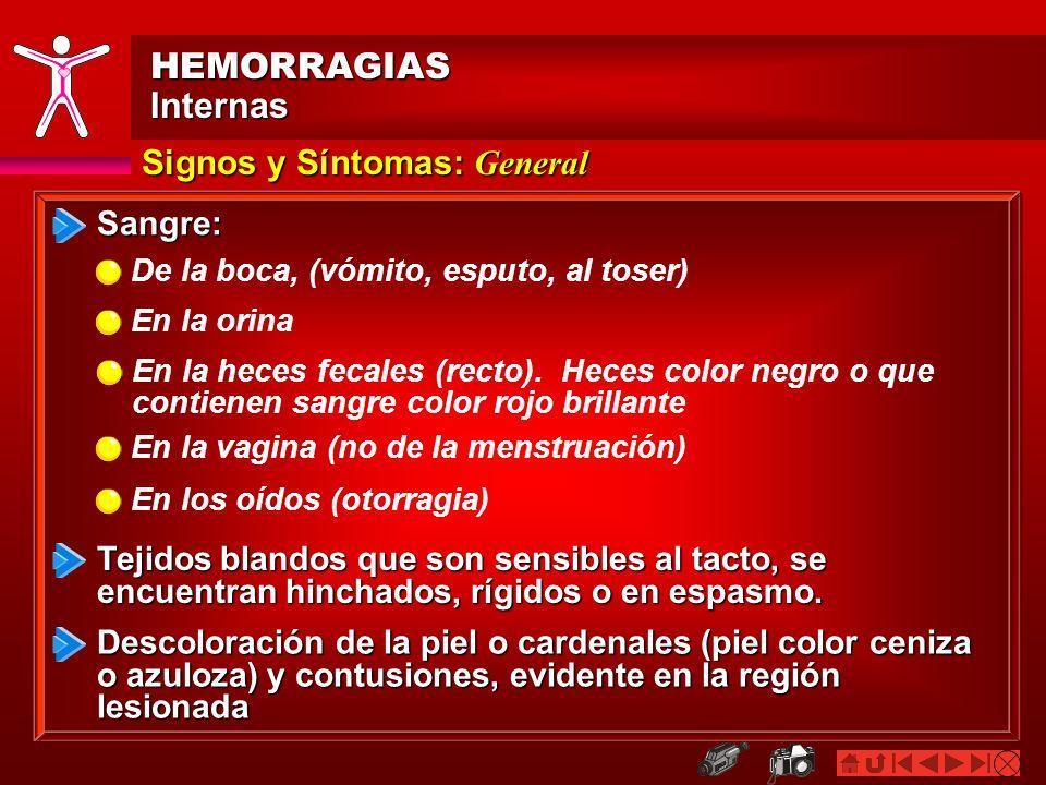 HEMORRAGIASInternas Signos y Síntomas: General Sangre: Tejidos blandos que son sensibles al tacto, se encuentran hinchados, rígidos o en espasmo. De l