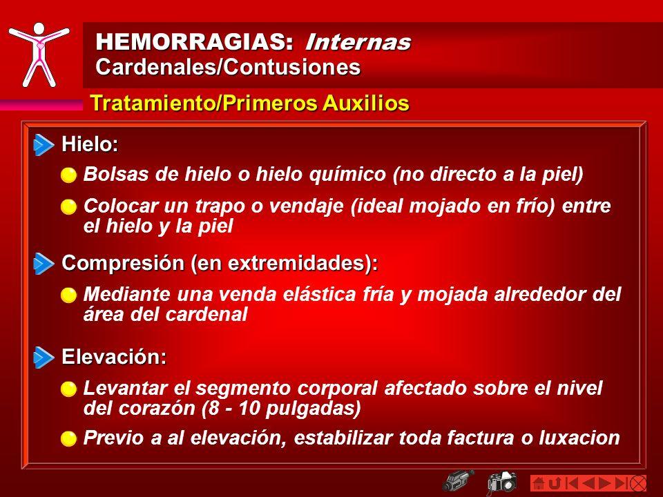 HEMORRAGIAS: Internas Cardenales/Contusiones Tratamiento/Primeros Auxilios Hielo: Compresión (en extremidades): Bolsas de hielo o hielo químico (no di