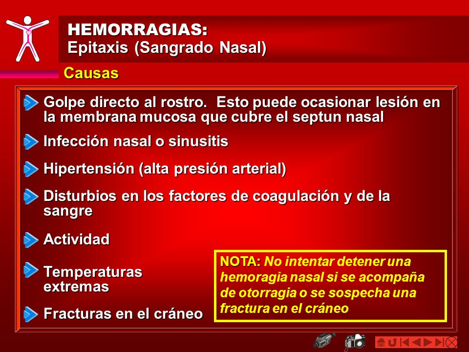 HEMORRAGIAS: Epitaxis (Sangrado Nasal) Causas Golpe directo al rostro. Esto puede ocasionar lesión en la membrana mucosa que cubre el septun nasal Hip