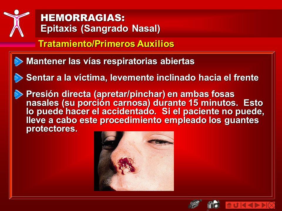 HEMORRAGIAS: Epitaxis (Sangrado Nasal) Tratamiento/Primeros Auxilios Sentar a la víctima, levemente inclinado hacia el frente Presión directa (apretar