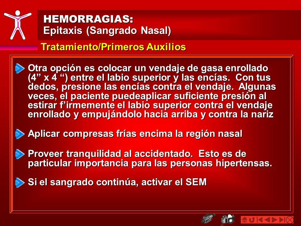 HEMORRAGIAS: Epitaxis (Sangrado Nasal) Tratamiento/Primeros Auxilios Presión Directa o Pinchar ambas Fosas Nasales