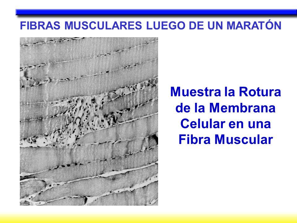 FIBRAS MUSCULARES LUEGO DE UN MARATÓN Muestra la Rotura de la Membrana Celular en una Fibra Muscular
