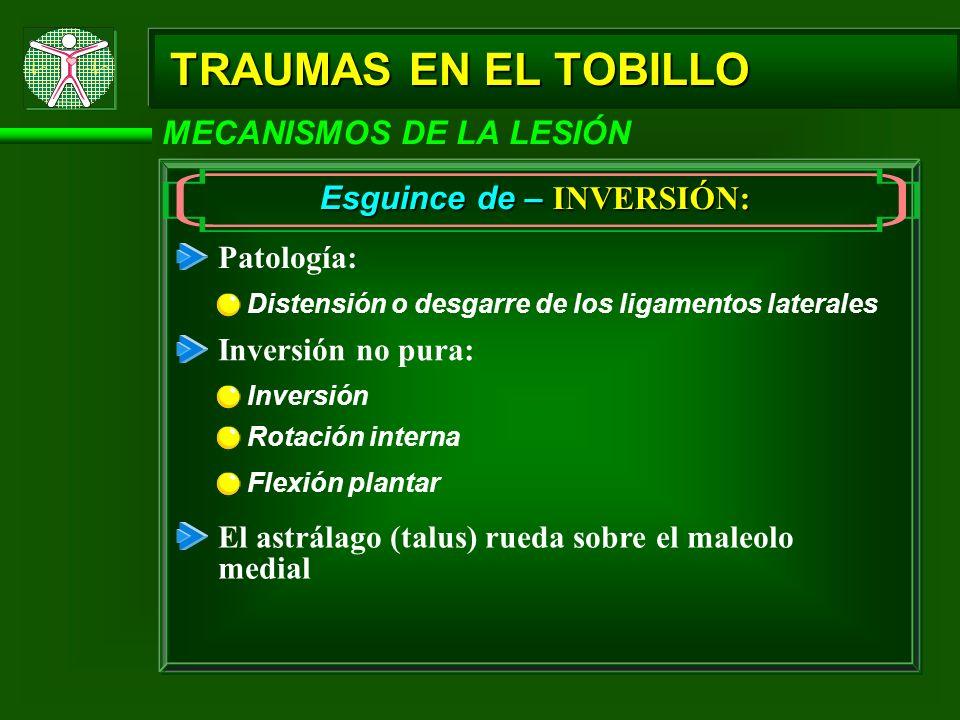 TRAUMAS EN EL TOBILLO MECANISMOS DE LA LESIÓN Esguince de – EVERSIÓN: Patología – ligamentos afectados: Ruptura del ligamento deltoide Separación del ligamento tibioperoneal (tibiofibular) Ruptura del ligamento medial
