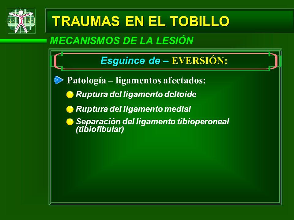 TRAUMAS EN EL TOBILLO MECANISMOS DE LA LESIÓN Esguince de – EVERSIÓN: Patología – ligamentos afectados: Ruptura del ligamento deltoide Separación del