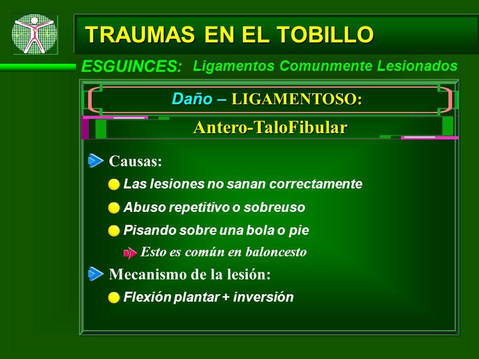 TRAUMAS EN EL TOBILLO ESGUINCES: Ligamentos Comunmente Lesionados Daño – LIGAMENTOSO: Antero-TaloFibular Causas: Las lesiones no sanan correctamente A
