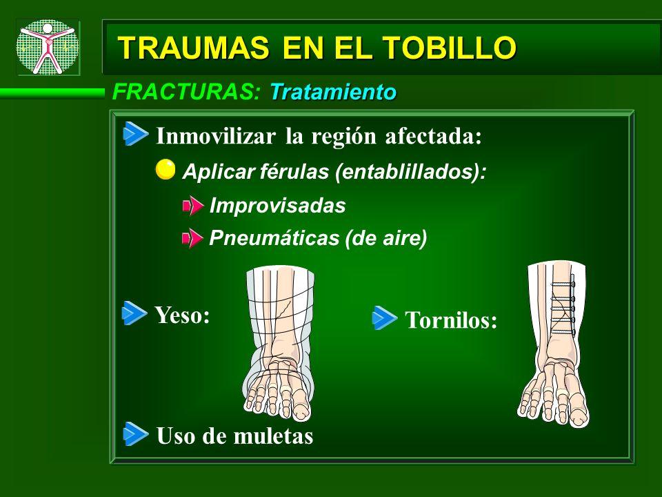 Tratamiento FRACTURAS: Tratamiento TRAUMAS EN EL TOBILLO Uso de muletas Inmovilizar la región afectada: Aplicar férulas (entablillados): Improvisadas