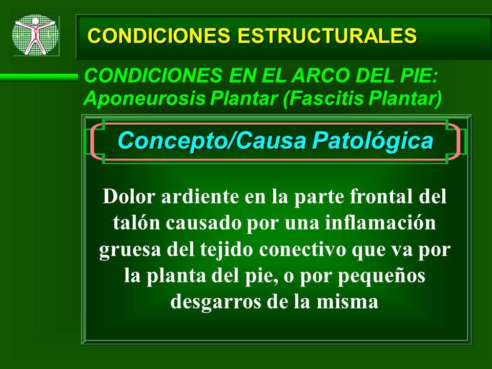 CONDICIONES ESTRUCTURALES CONDICIONES EN EL ARCO DEL PIE: Aponeurosis Plantar (Fascitis Plantar) Concepto/Causa Patológica Dolor ardiente en la parte
