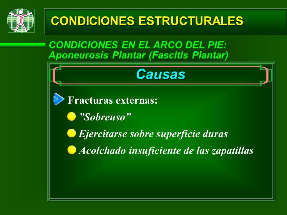 CONDICIONES ESTRUCTURALES CONDICIONES EN EL ARCO DEL PIE: Aponeurosis Plantar (Fascitis Plantar) Causas Fracturas externas: Sobreuso Ejercitarse sobre