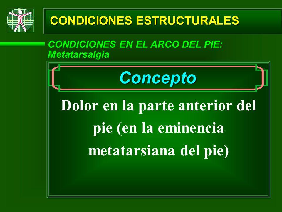 CONDICIONES ESTRUCTURALES CONDICIONES EN EL ARCO DEL PIE: Metatarsalgia Concepto Dolor en la parte anterior del pie (en la eminencia metatarsiana del