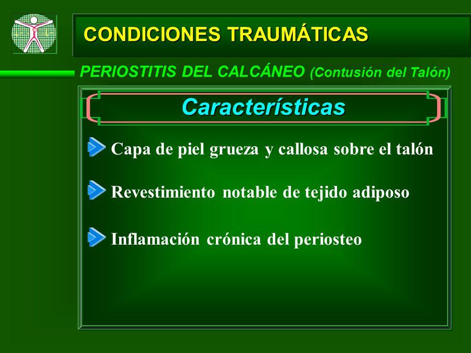 CONDICIONES TRAUMÁTICAS PERIOSTITIS DEL CALCÁNEO (Contusión del Talón) Características Capa de piel grueza y callosa sobre el talón Revestimiento nota