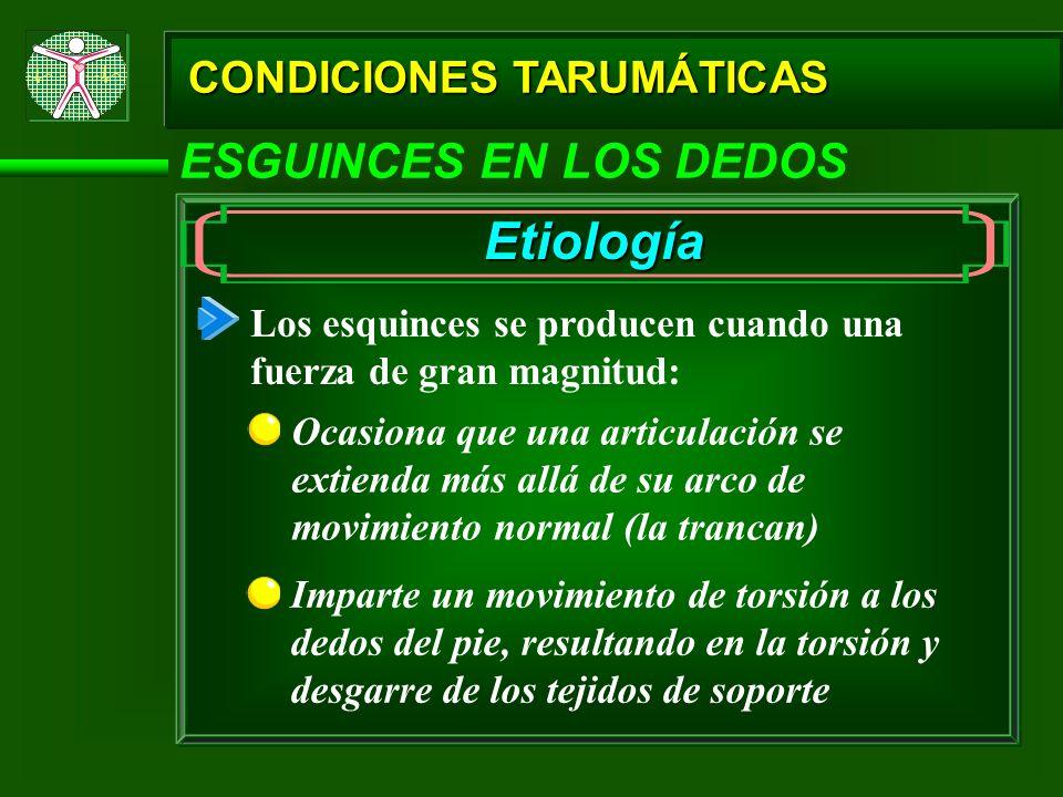 CONDICIONES TARUMÁTICAS ESGUINCES EN LOS DEDOS Etiología Los esquinces se producen cuando una fuerza de gran magnitud: Ocasiona que una articulación s
