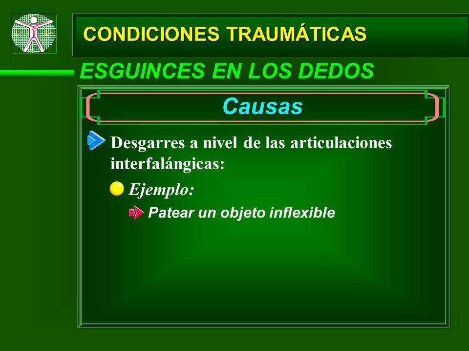 CONDICIONES TRAUMÁTICAS ESGUINCES EN LOS DEDOS Causas Desgarres a nivel de las articulaciones interfalángicas: Ejemplo: Patear un objeto inflexible