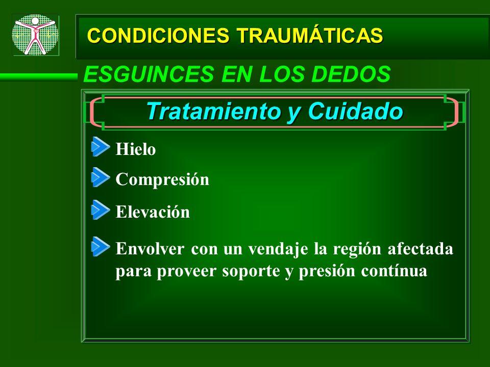 CONDICIONES TRAUMÁTICAS ESGUINCES EN LOS DEDOS Tratamiento y Cuidado Hielo Compresión Elevación Envolver con un vendaje la región afectada para provee