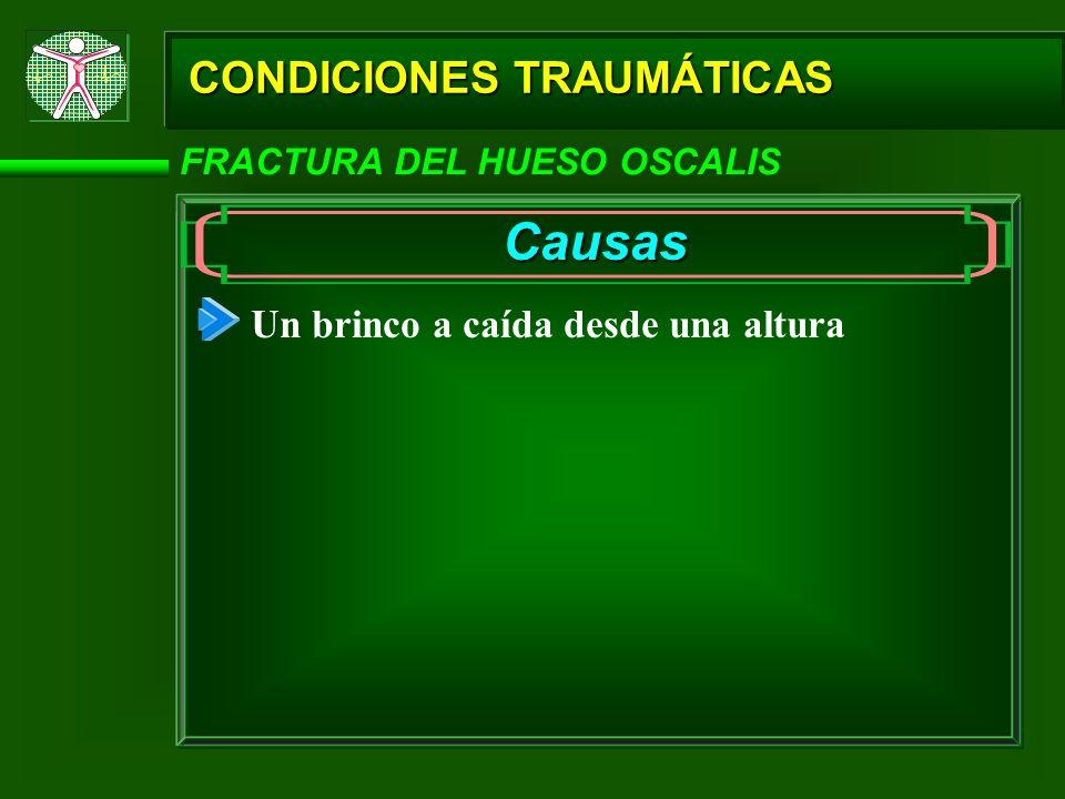 CONDICIONES TRAUMÁTICAS FRACTURA DEL HUESO OSCALIS Causas Un brinco a caída desde una altura