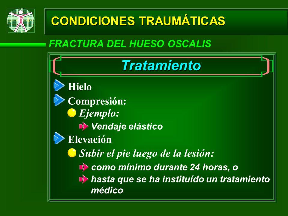 CONDICIONES TRAUMÁTICAS FRACTURA DEL HUESO OSCALIS Tratamiento Hielo Compresión: Elevación Ejemplo: Vendaje elástico Subir el pie luego de la lesión: