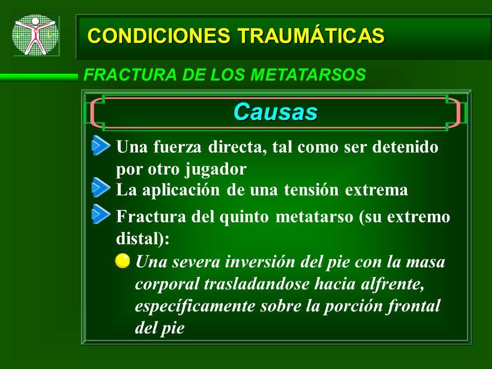 CONDICIONES TRAUMÁTICAS FRACTURA DE LOS METATARSOS Causas Una fuerza directa, tal como ser detenido por otro jugador La aplicación de una tensión extr