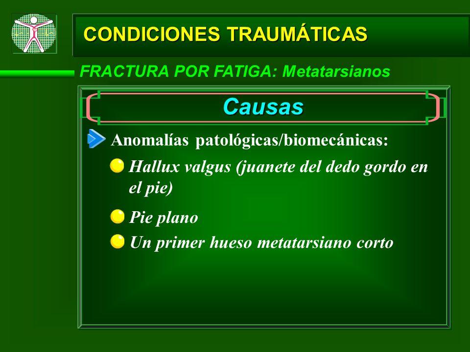 CONDICIONES TRAUMÁTICAS FRACTURA POR FATIGA: Metatarsianos Causas Anomalías patológicas/biomecánicas: Hallux valgus (juanete del dedo gordo en el pie)
