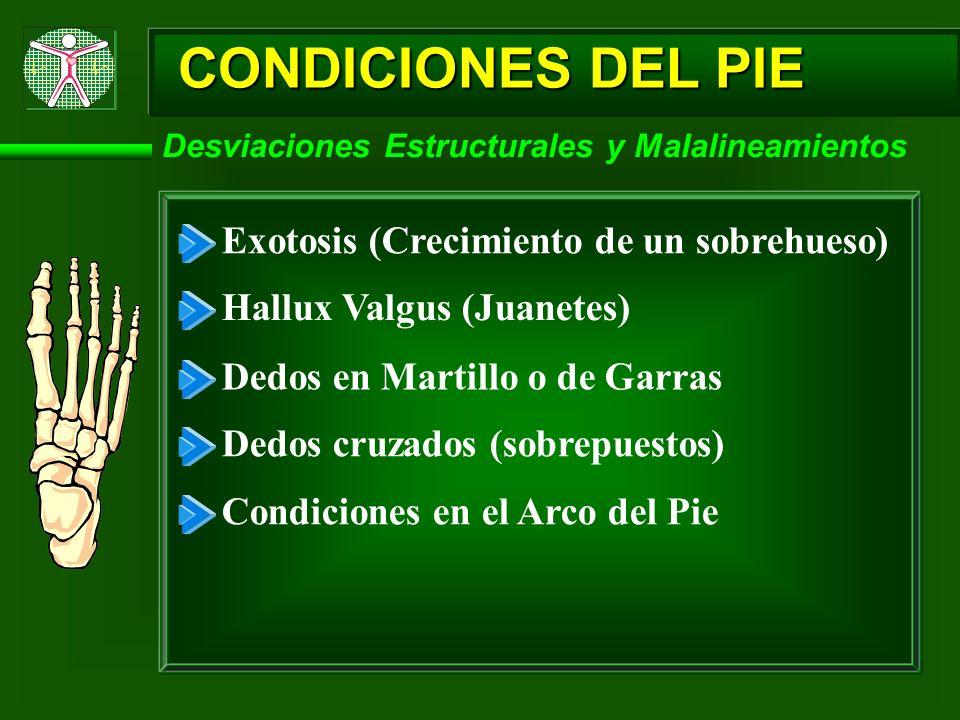 CONDICIONES DEL PIE Desviaciones Estructurales y Malalineamientos Exotosis (Crecimiento de un sobrehueso) Hallux Valgus (Juanetes) Dedos en Martillo o