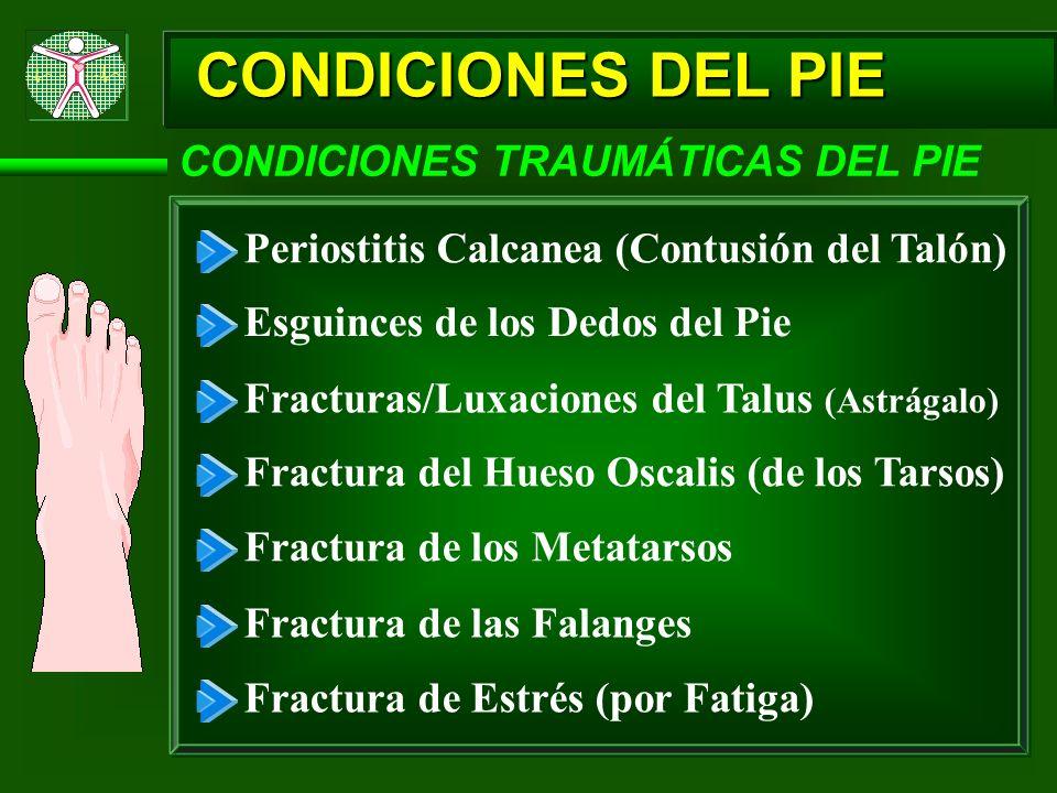 CONDICIONES DEL PIE CONDICIONES TRAUMÁTICAS DEL PIE Periostitis Calcanea (Contusión del Talón) Esguinces de los Dedos del Pie Fracturas/Luxaciones del