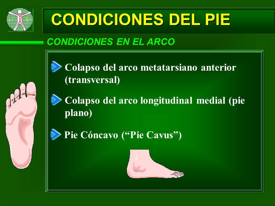 CONDICIONES DEL PIE CONDICIONES EN EL ARCO Colapso del arco metatarsiano anterior (transversal) Colapso del arco longitudinal medial (pie plano) Pie C