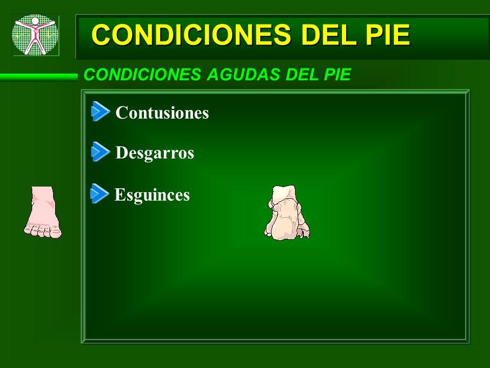 CONDICIONES DEL PIE CONDICIONES AGUDAS DEL PIE Contusiones Desgarros Esguinces