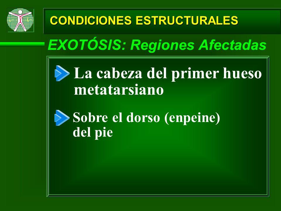 CONDICIONES ESTRUCTURALES EXOTÓSIS: Regiones Afectadas La cabeza del primer hueso metatarsiano Sobre el dorso (enpeine) del pie