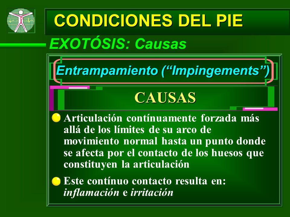 CONDICIONES DEL PIE EXOTÓSIS: Causas Entrampamiento (Impingements) CAUSAS Articulación contínuamente forzada más allá de los límites de su arco de mov