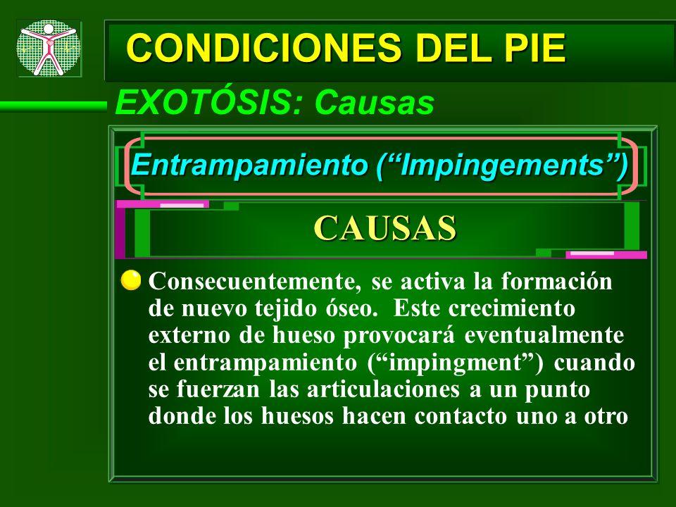 CONDICIONES DEL PIE EXOTÓSIS: Causas Entrampamiento (Impingements) CAUSAS Consecuentemente, se activa la formación de nuevo tejido óseo. Este crecimie