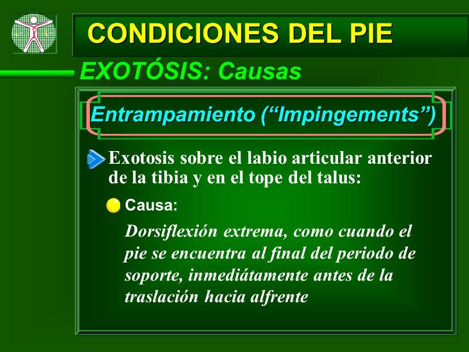 CONDICIONES DEL PIE EXOTÓSIS: Causas Entrampamiento (Impingements) Exotosis sobre el labio articular anterior de la tibia y en el tope del talus: Caus