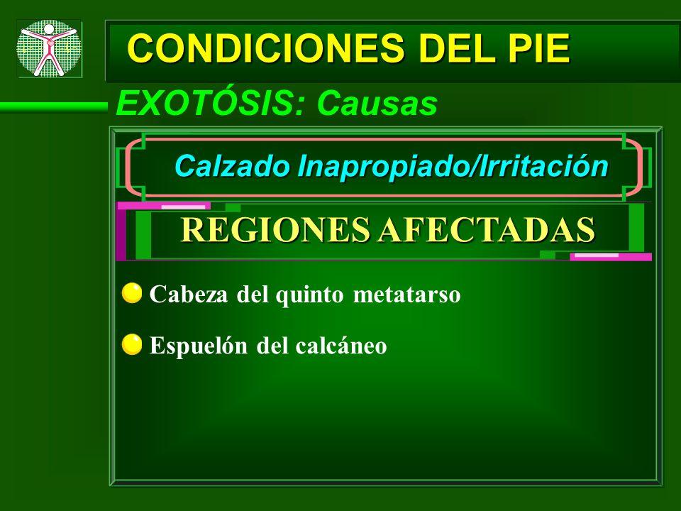 CONDICIONES DEL PIE EXOTÓSIS: Causas Calzado Inapropiado/Irritación REGIONES AFECTADAS Cabeza del quinto metatarso Espuelón del calcáneo