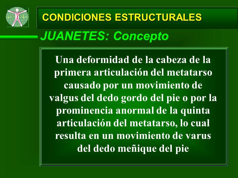 CONDICIONES ESTRUCTURALES JUANETES: Concepto Una deformidad de la cabeza de la primera articulación del metatarso causado por un movimiento de valgus