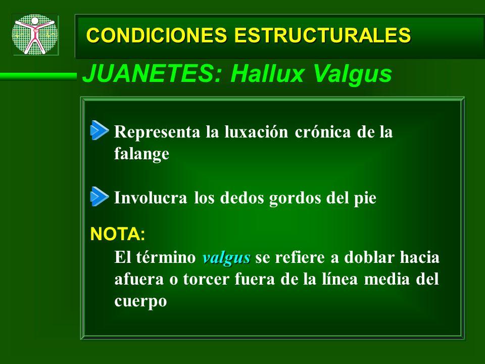 CONDICIONES ESTRUCTURALES JUANETES: Hallux Valgus Representa la luxación crónica de la falange Involucra los dedos gordos del pie NOTA: valgus El térm