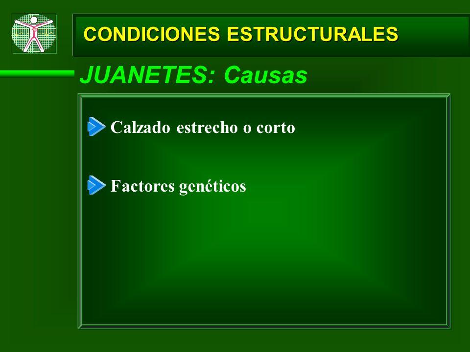 CONDICIONES ESTRUCTURALES JUANETES: Causas Calzado estrecho o corto Factores genéticos