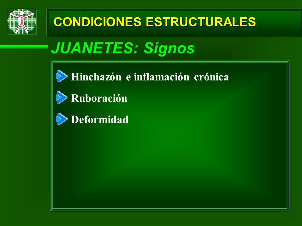 CONDICIONES ESTRUCTURALES JUANETES: Signos Hinchazón e inflamación crónica Ruboración Deformidad