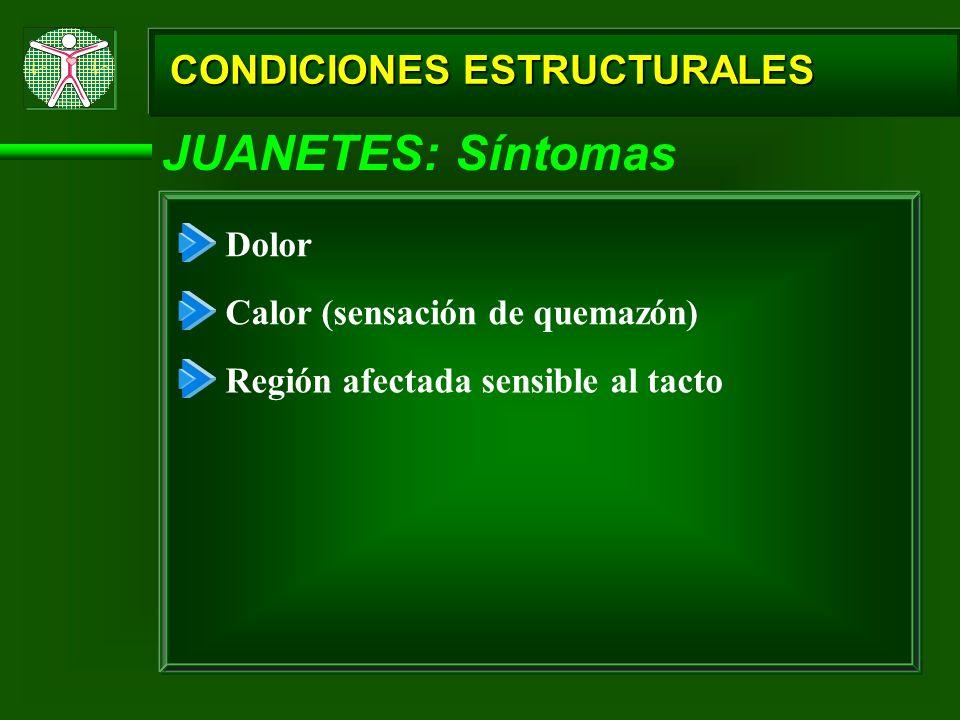 CONDICIONES ESTRUCTURALES JUANETES: Síntomas Dolor Calor (sensación de quemazón) Región afectada sensible al tacto