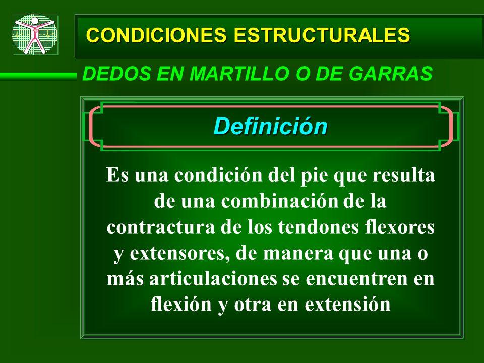 CONDICIONES ESTRUCTURALES DEDOS EN MARTILLO O DE GARRAS Definición Es una condición del pie que resulta de una combinación de la contractura de los te