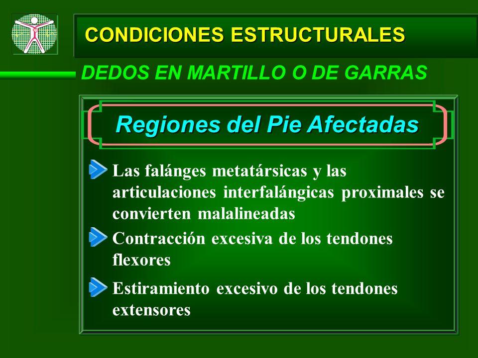 CONDICIONES ESTRUCTURALES DEDOS EN MARTILLO O DE GARRAS Regiones del Pie Afectadas Las falánges metatársicas y las articulaciones interfalángicas prox