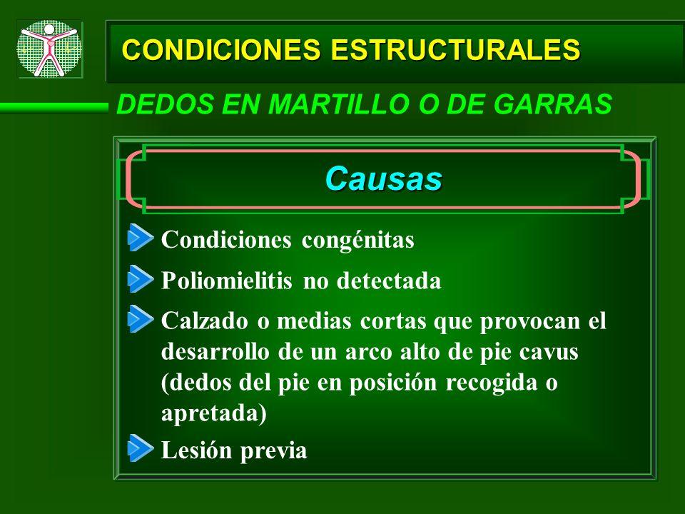 CONDICIONES ESTRUCTURALES DEDOS EN MARTILLO O DE GARRAS Causas Condiciones congénitas Poliomielitis no detectada Calzado o medias cortas que provocan